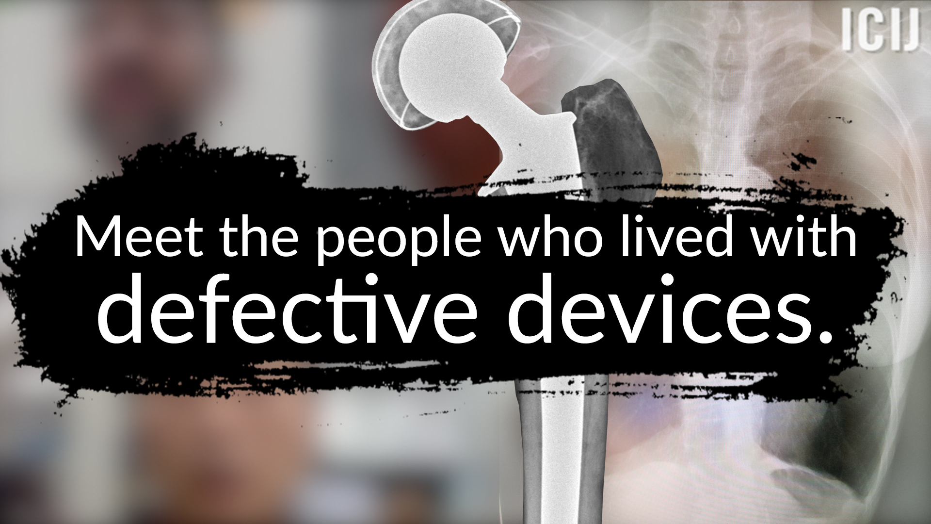 Patients harmed by medical devices