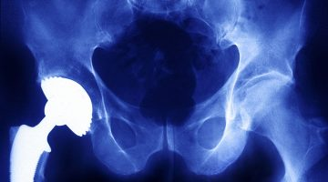 X-ray of a prosthetic hip implant
