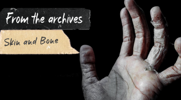 From the archives: Skin and Bone